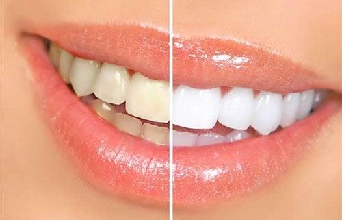 8 alimentos que causan dientes amarillentos