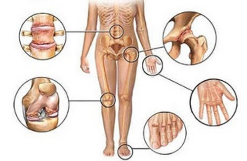 5 antiinflamatorios naturales para el dolor articular