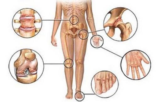 Zonas de dolor articular