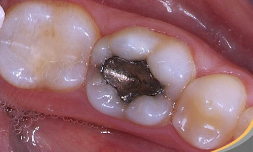 Riesgos de los empastes de amalgama para la salud