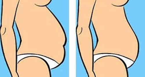 ¿Qué tipo de barriga tienes y cómo reducirla?