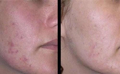 Cómo atenuar las marcas dejadas por el acné
