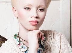 albinismo 1