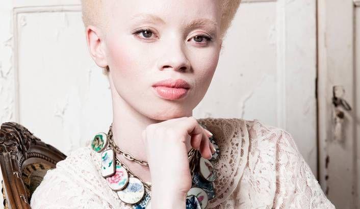 Albinismo: El conmovedor caso de la modelo Thando Hopa