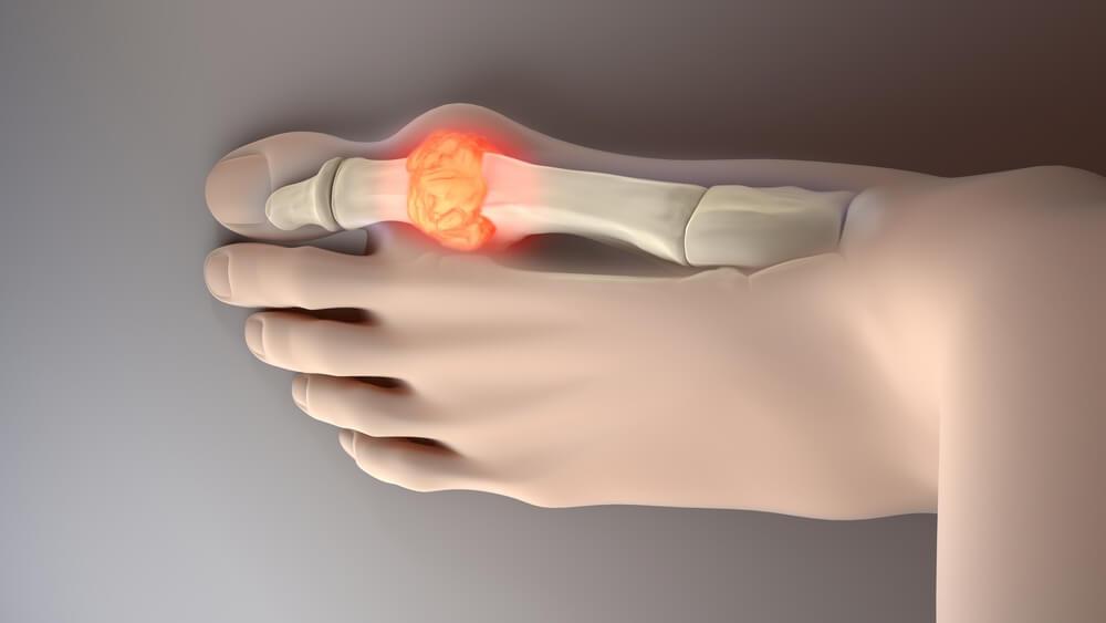 Dolor del pie resultado de el ácido úrico