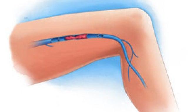 Síntomas de una trombosis venosa en las piernas