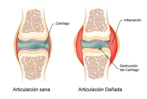 Remedio que ayudará a combatir los dolores generados por la artritis