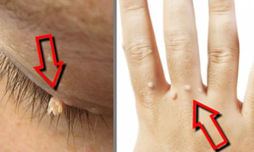 Efectivos remedios hechos en casa para eliminar las verrugas
