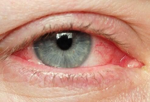 Ojos-irritados