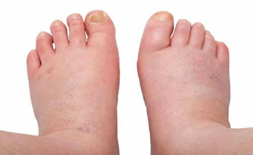 dolor en el pie debajo del tobillo
