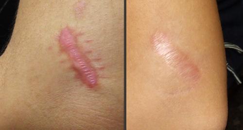 remedios caseros para quitar cicatriz de quemadura