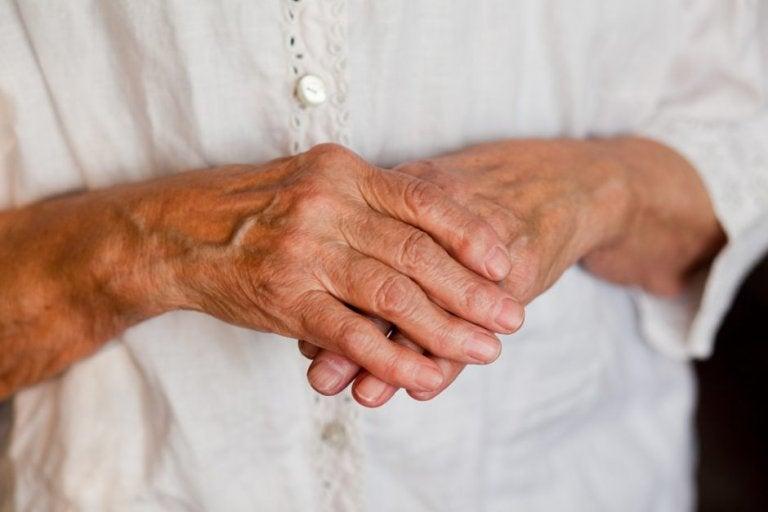 7 remedios naturales para la artritis en las manos