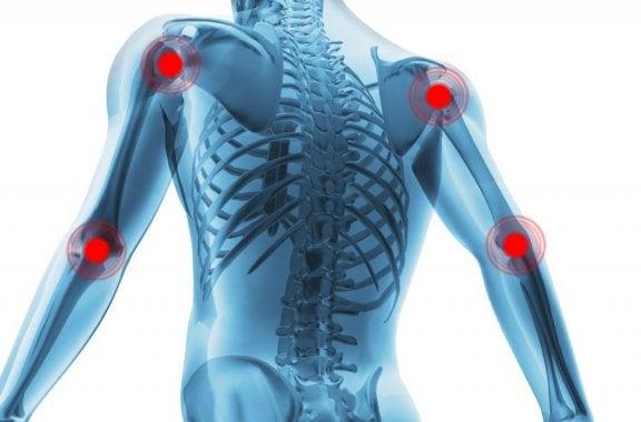 artritis-dolor-articulaciones