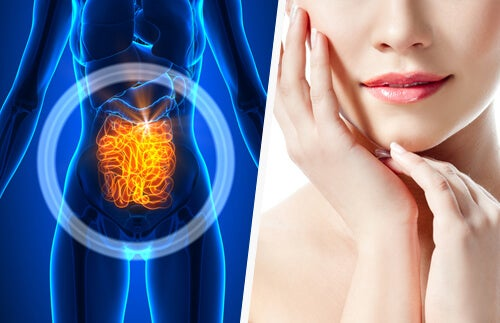 Por qué deberías sanar el intestino si quieres mejorar la piel