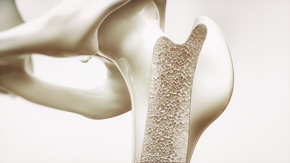 Recreación de hueso con osteopororis