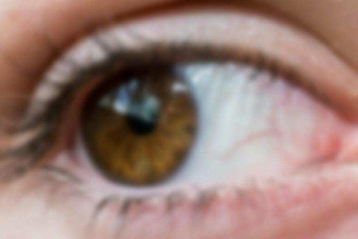 Dolor cabeza izquierda visión borrosa