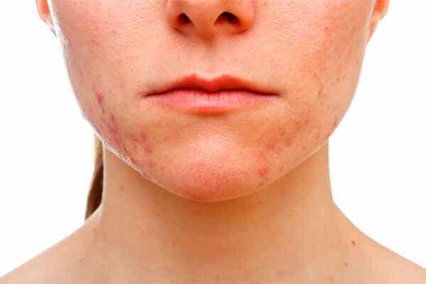 Tips para eliminar el acné que aparece en la barbilla