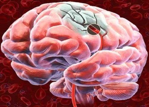 Señales de alerta y prevención de un derrame cerebral