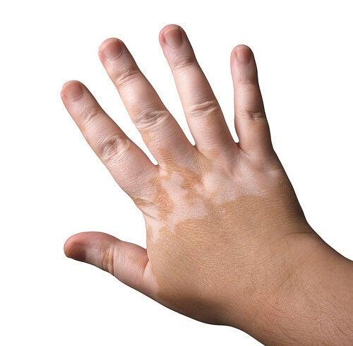 Vitiligo en las manos.