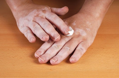 El vitiligo es una enfermedad de la piel que puede afectar a muchas partes del cuerpo.