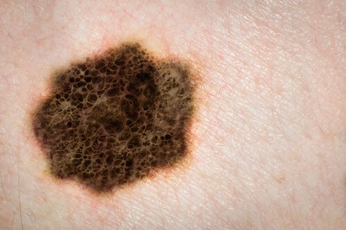 melanoma tumor negro
