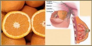 Parecido entre naranjas y mamas