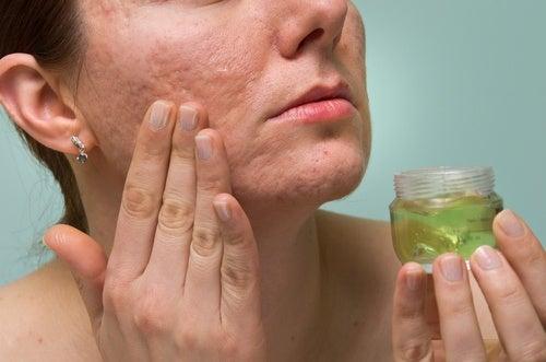 O gel de aloe vera limpa e combate a acne