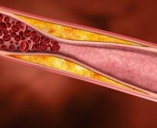 Arteria obstruida por colesterol