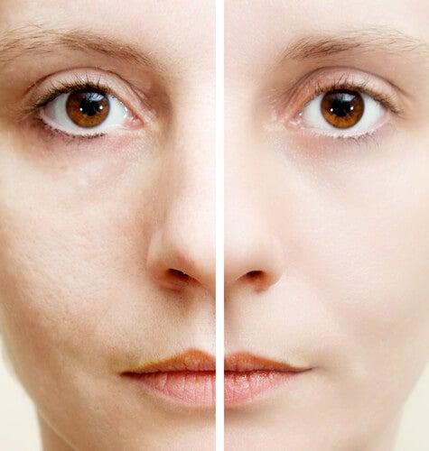 5 ingredientes naturales que ayudan a eliminar las manchas oscuras