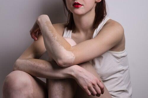Tratar el vitíligo, mujer con la enfermedad
