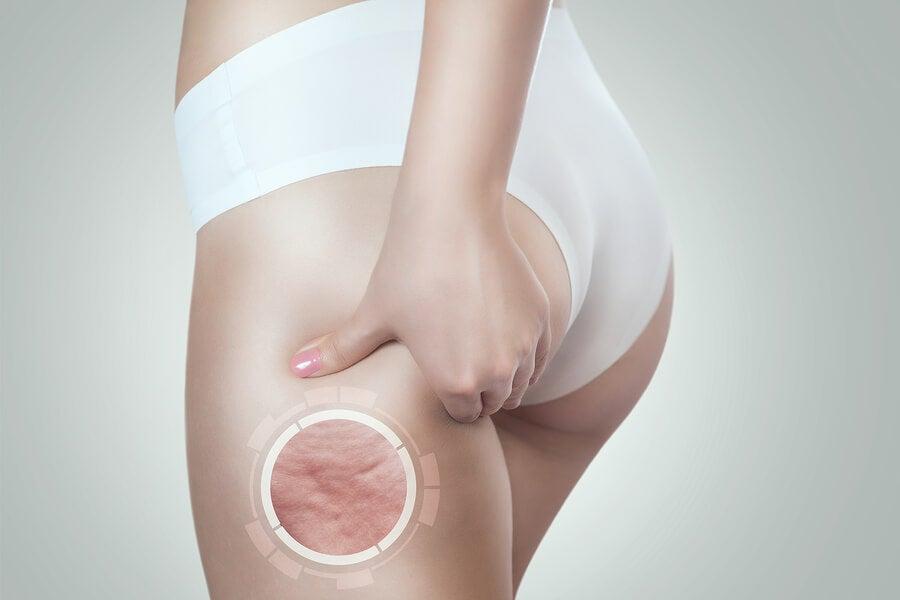 ¿Qué causa la celulitis?