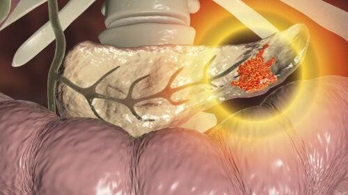 ¿Se puede prevenir el cáncer de páncreas?