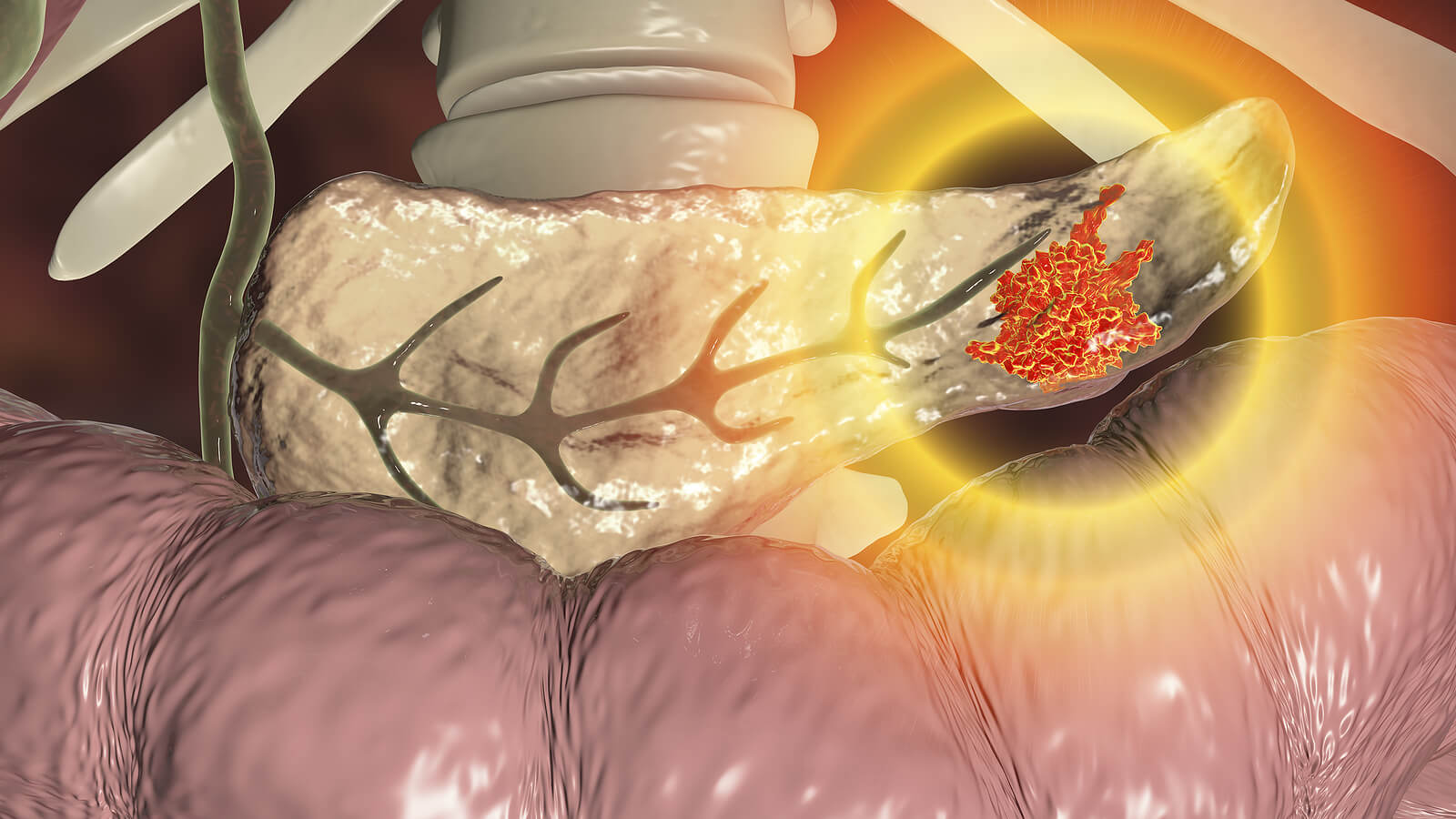 Tumor en el páncreas como causa de síndrome de Zollinger-Ellison.