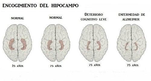 Aprende a reconocer los 10 principales indicios de la enfermedad de Alzheimer