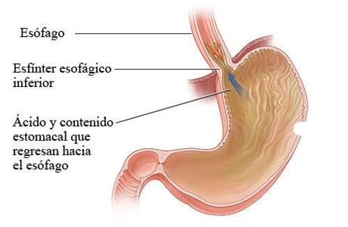 Tos cronica por gastritis