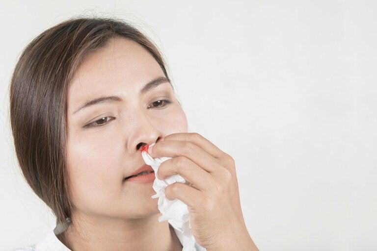 ¿Qué debemos hacer si sufrimos una hemorragia nasal?