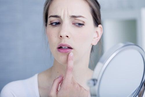 10 remedios naturales para tratar las úlceras bucales
