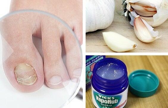 El medio para el tratamiento del hongo entre los dedos de los pies