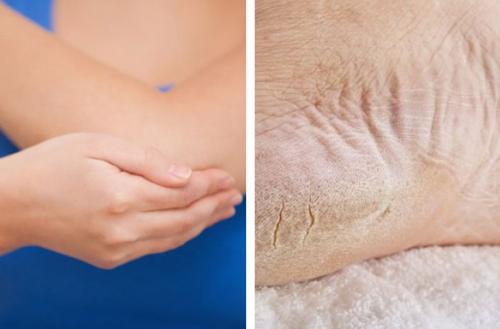 Recupera la salud de los pies y codos resecos en una semana