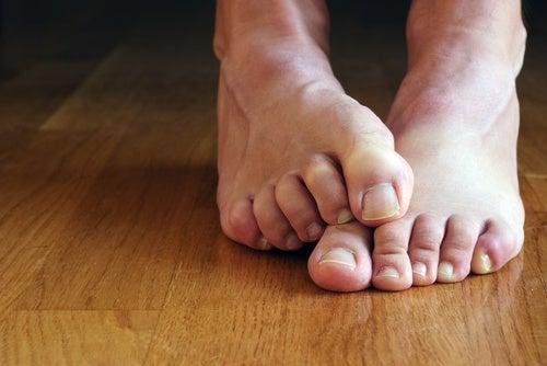 El ungüento barato para el hongo de los pie