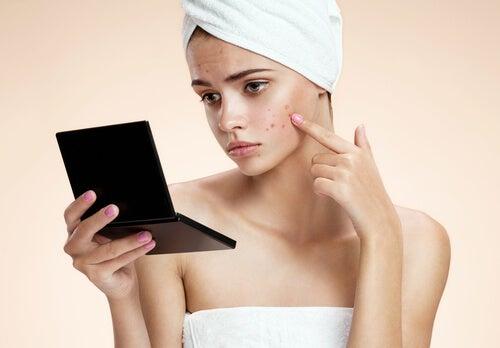 4 causas poco obvias de espinillas en el cuerpo que no están relacionadas con las hormonas