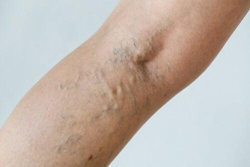 Como saber si tienes coagulos en las piernas