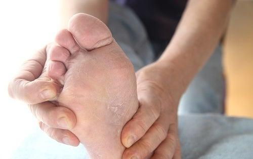 El pie de atleta: tratamientos y métodos de prevención