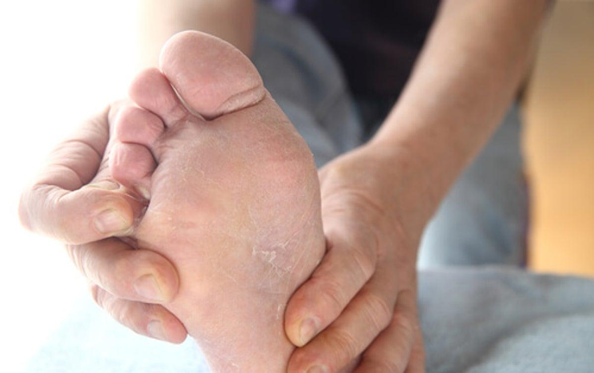contagio del pie de atleta