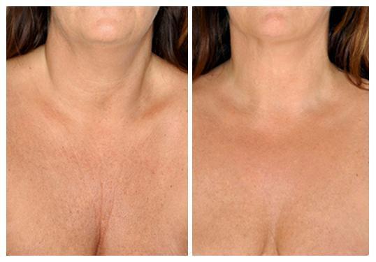 Los mejores tratamientos naturales para cuidar la piel del cuello