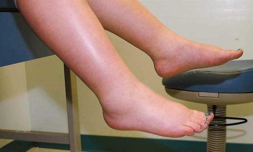 Sufro retención de líquidos en las piernas: ¿qué puedo hacer?