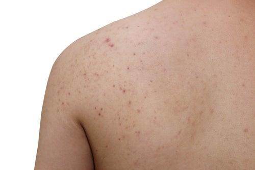 Tips-para-evitar-los granitos en la espalda