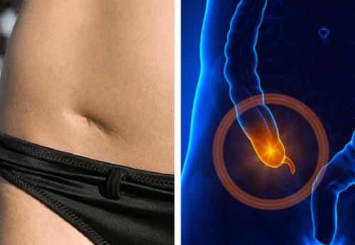 Aprende a detectar a tiempo las señales de una apendicitis