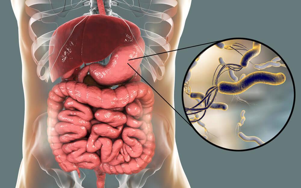 La Helicobacter pylori es la bacteria que puede atacar el estómago.