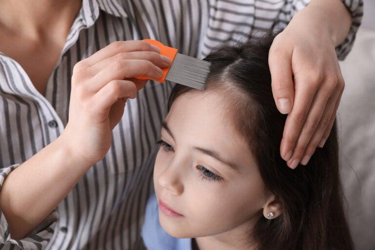 7 remedios naturales para eliminar los piojos y liendres